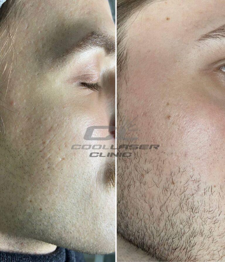 Шлифовка лица лазером
