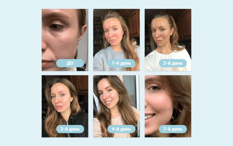 Шлифовка лица лазером до и после